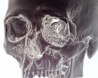 Yüz kemik kırıkları