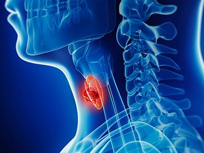 Baş-Boyun tümörleri