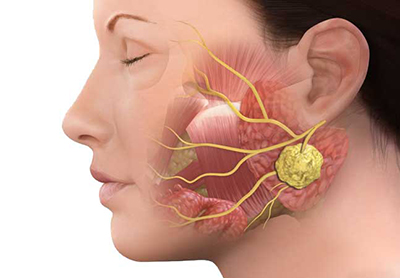 Tükürük bezi tümörleri